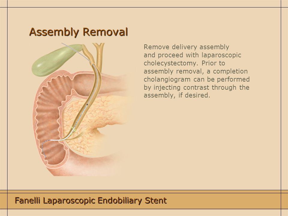 Assembly Removal