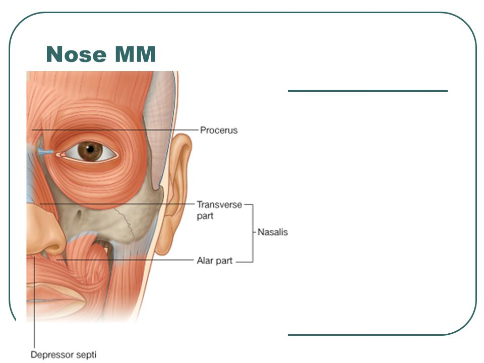 Nose MM