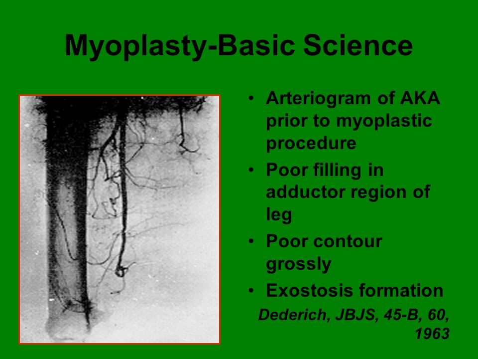 Myoplasty-Basic Science