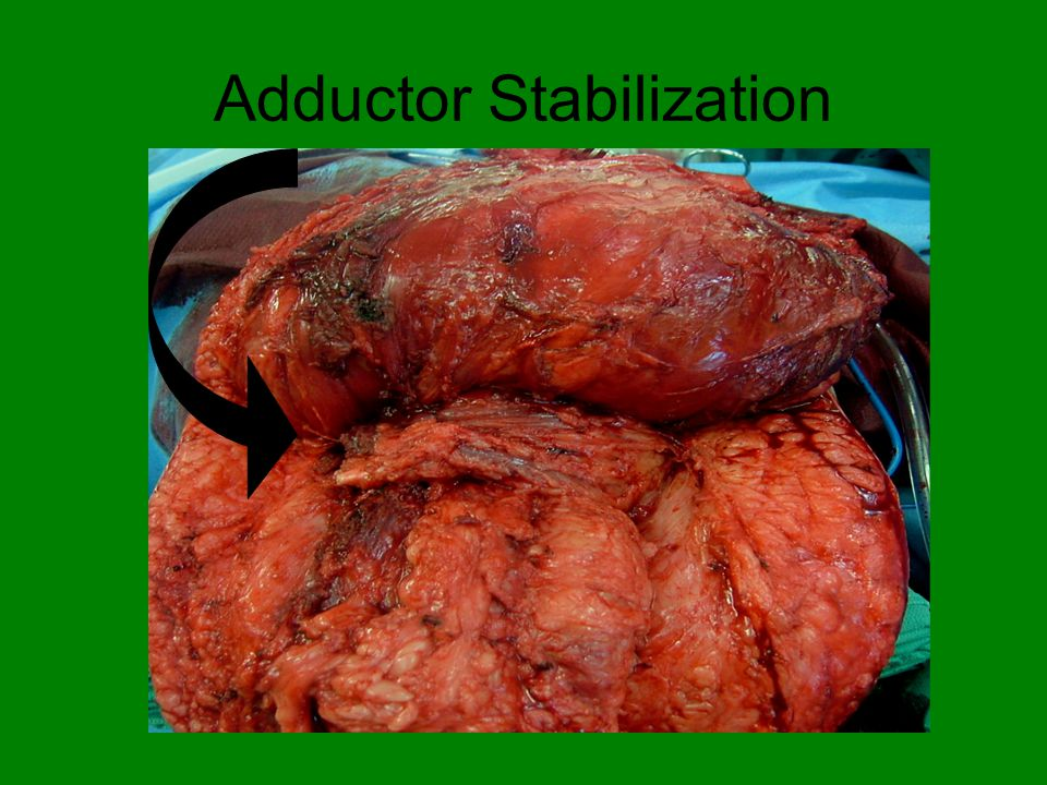 Adductor Stabilization