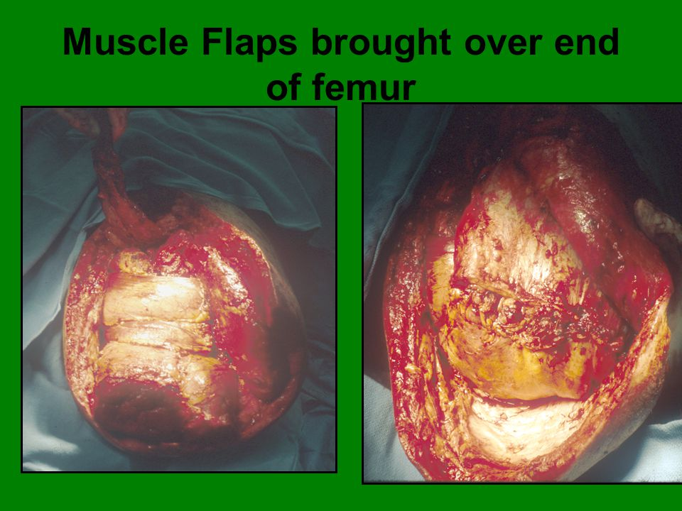 Muscle Flaps brought over end of femur