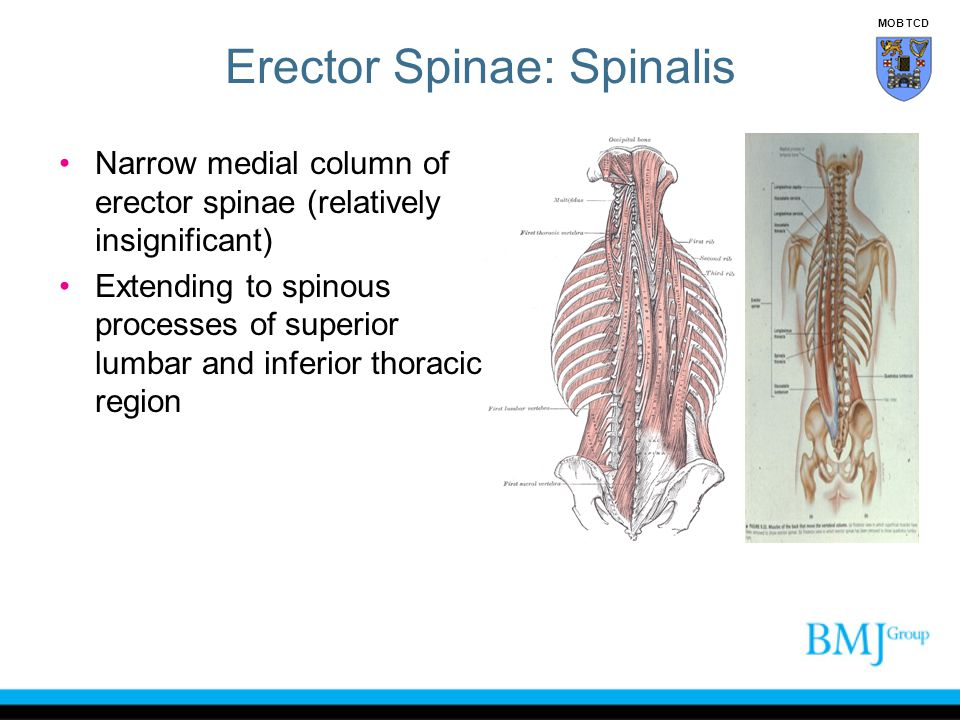 Erector Spinae: Spinalis