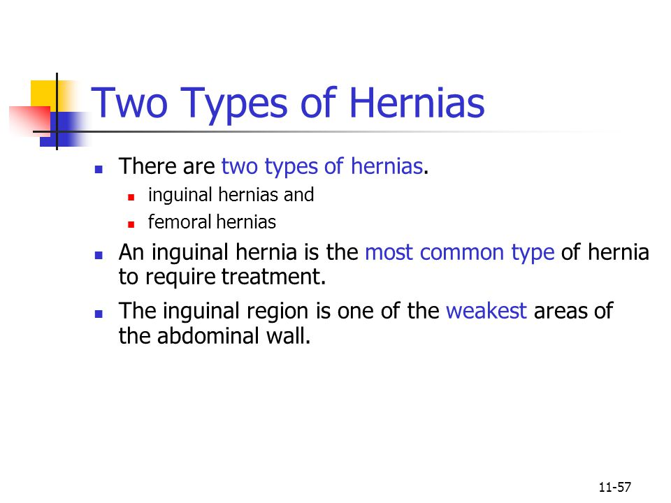 Two Types of Hernias There are two types of hernias.