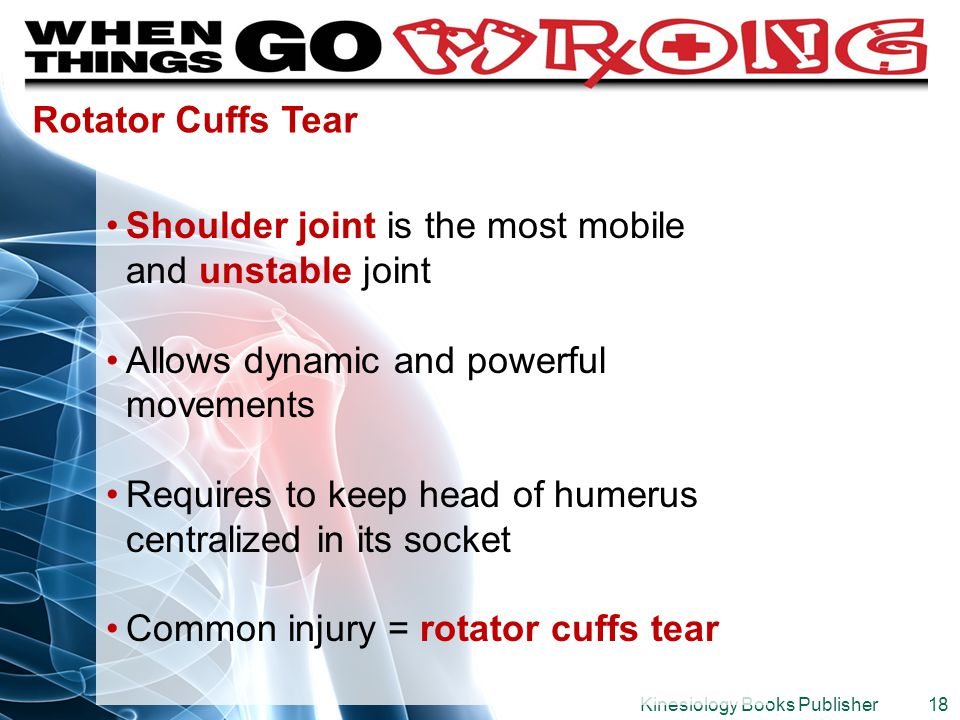 Shoulder joint is the most mobile and unstable joint