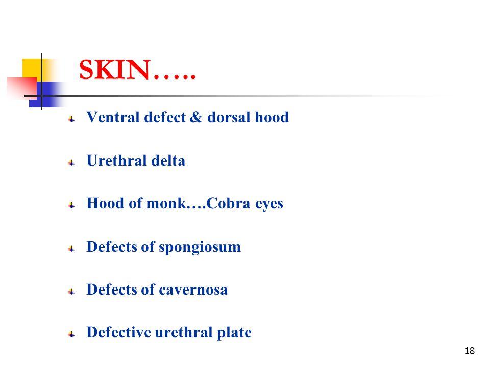 SKIN….. Ventral defect & dorsal hood Urethral delta