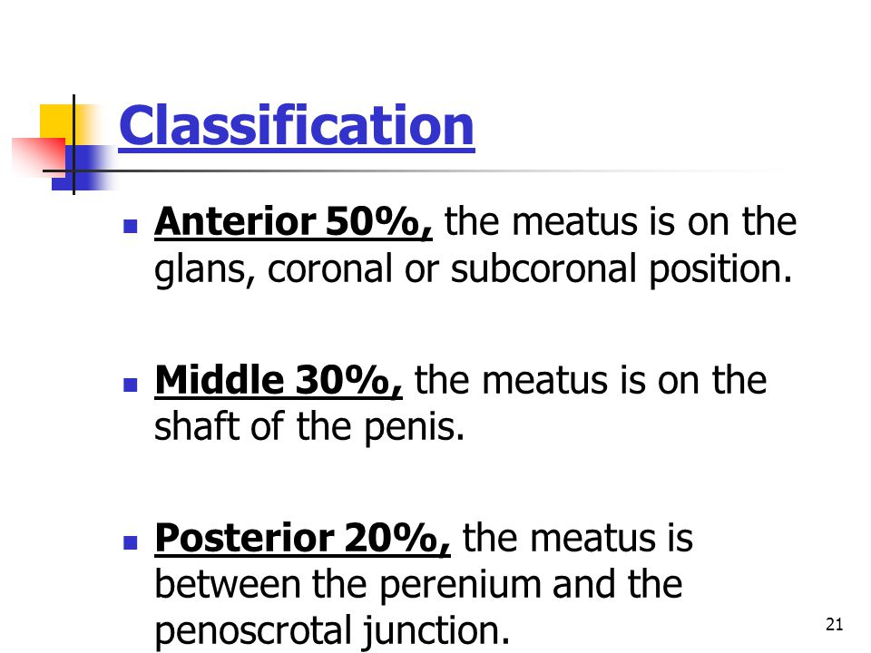 Classification Anterior 50%, the meatus is on the glans, coronal or subcoronal position. Middle 30%, the meatus is on the shaft of the penis.