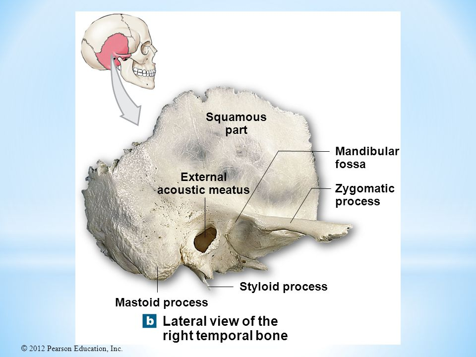 Lateral view of the right temporal bone Squamous part Mandibular fossa