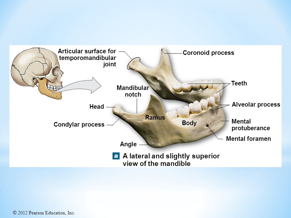 A lateral and slightly superior view of the mandible