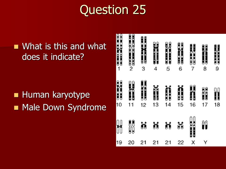 Question 25 What is this and what does it indicate Human karyotype