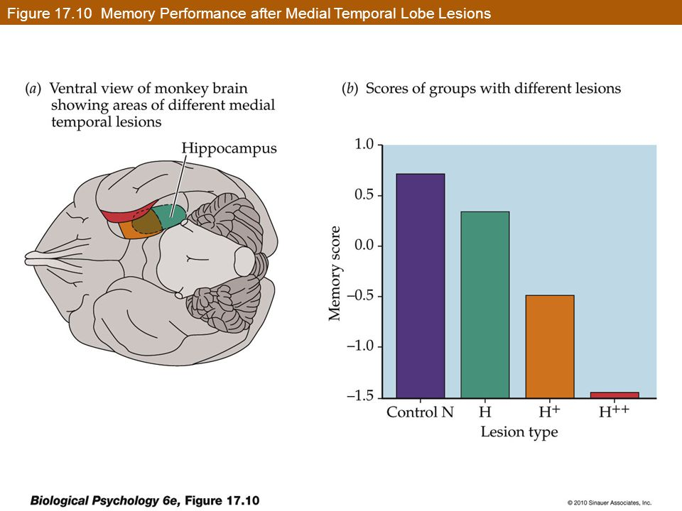 Figure 17.10 Memory Performance after Medial Temporal Lobe Lesions