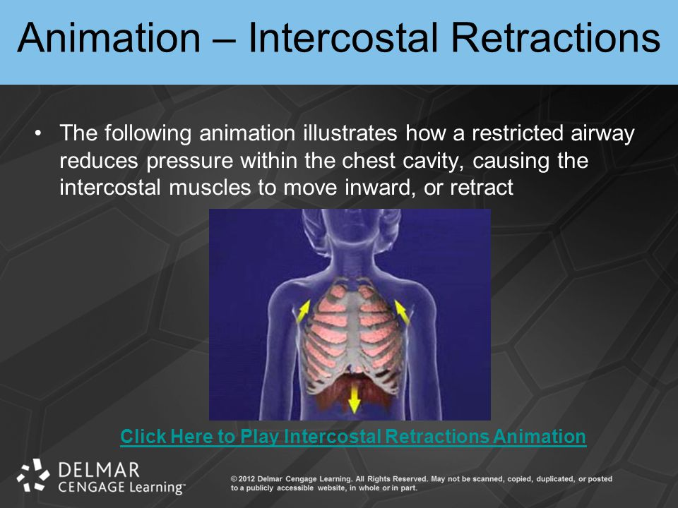 Animation – Intercostal Retractions
