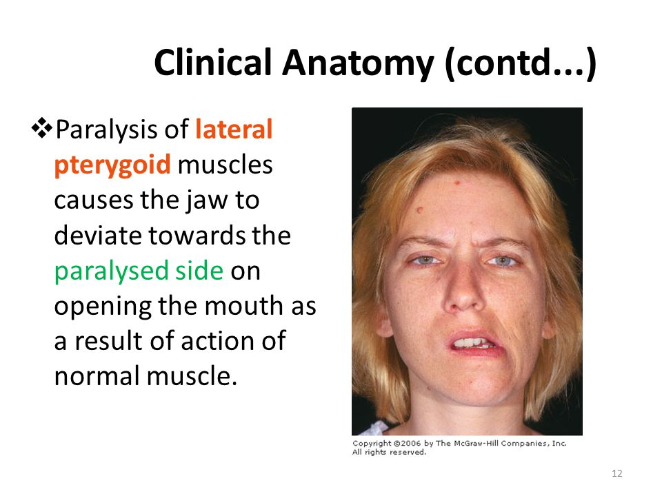 Clinical Anatomy (contd...)