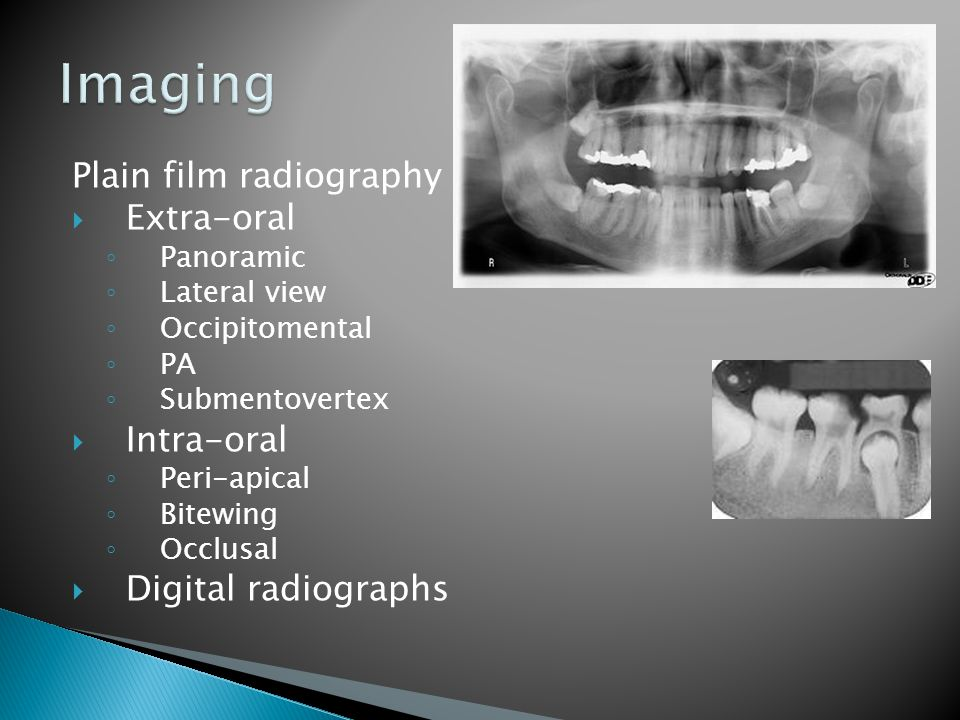Imaging Plain film radiography Extra-oral Intra-oral