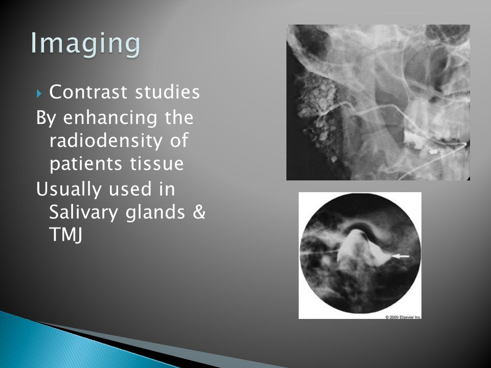 Imaging Contrast studies