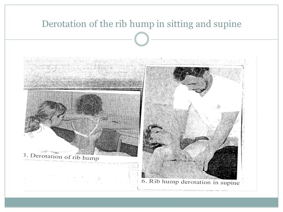 Derotation of the rib hump in sitting and supine