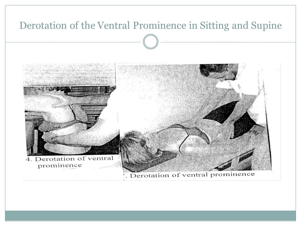 Derotation of the Ventral Prominence in Sitting and Supine
