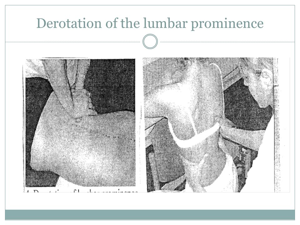 Derotation of the lumbar prominence