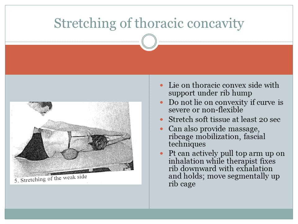 Stretching of thoracic concavity