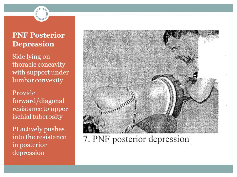 PNF Posterior Depression