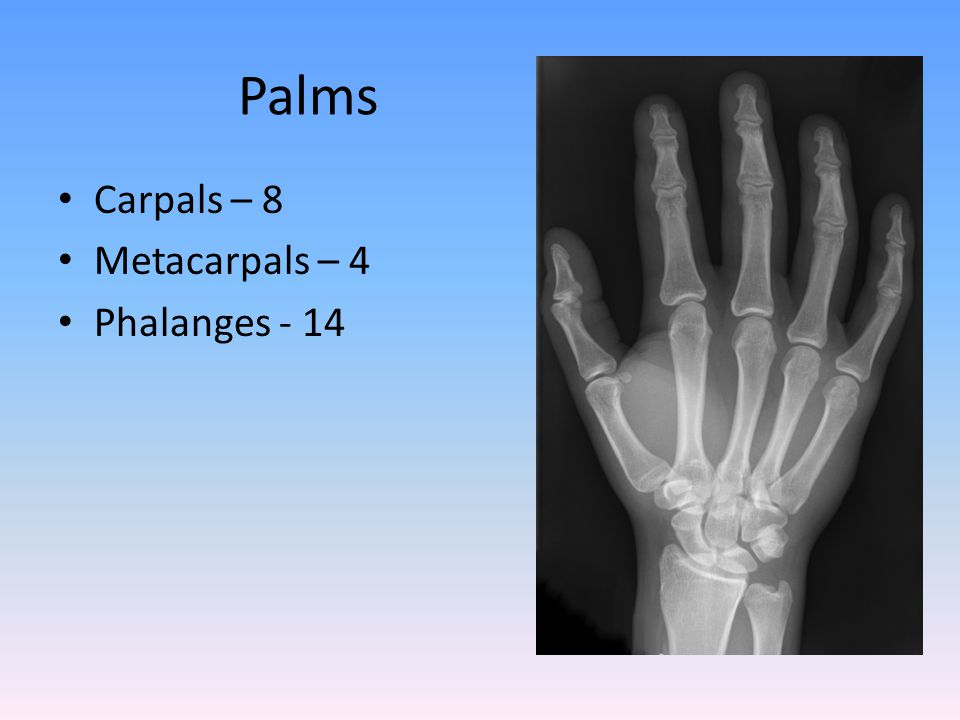 Palms Carpals – 8 Metacarpals – 4 Phalanges - 14