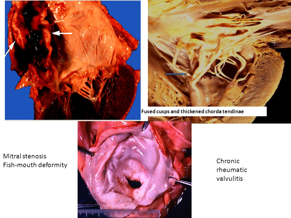 Chronic rheumatic valvulitis