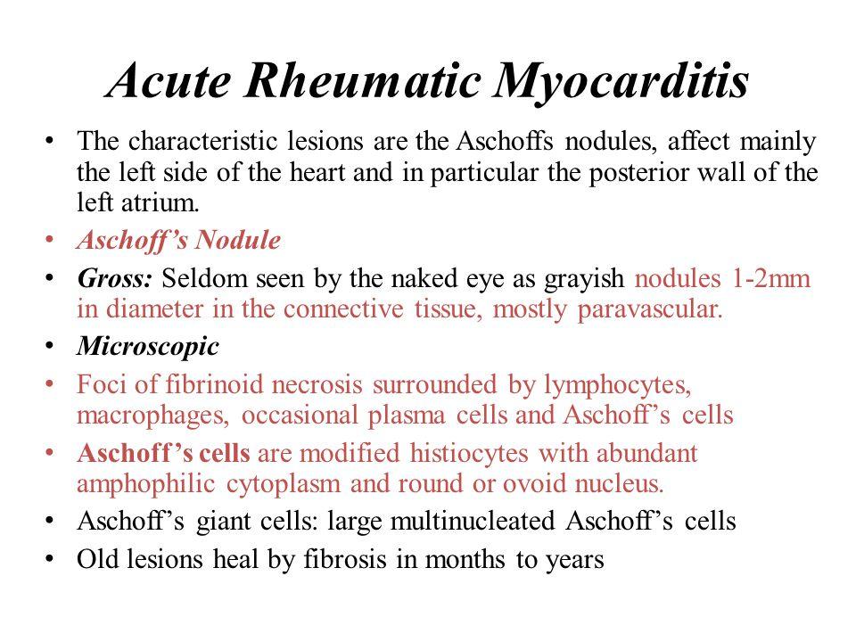 Acute Rheumatic Myocarditis
