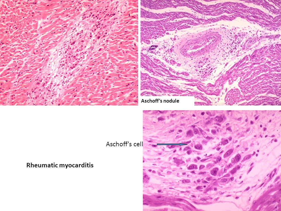 Rheumatic myocarditis