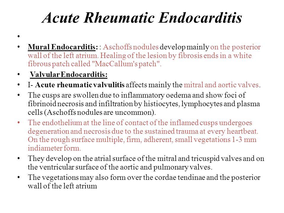 Acute Rheumatic Endocarditis
