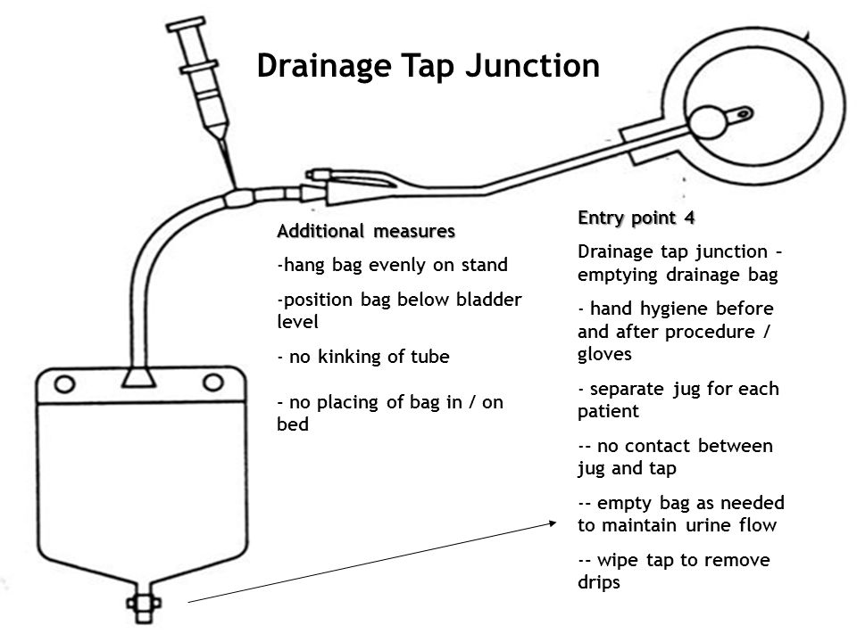 Drainage Tap Junction Drainage Tap Junction Entry point 4
