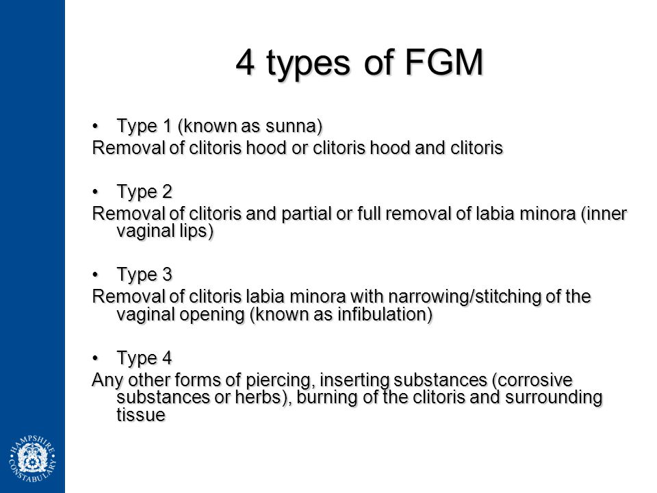 4 types of FGM Type 1 (known as sunna)