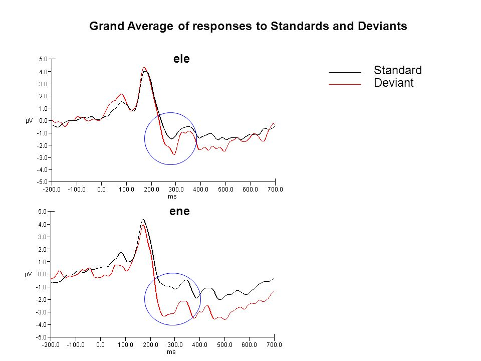 Grand Average of responses to Standards and Deviants