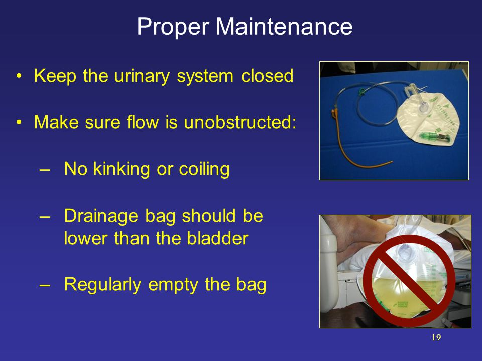 Promptly Remove Unnecessary Urinary Catheters