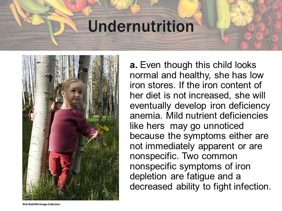 overnutrition and undernutrition Abstract when 19 children who had been hospitalized with undernutrition in the first year of life were compared with a control group three to four years later, the test group was found to be.