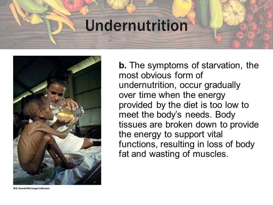 Undernutrition