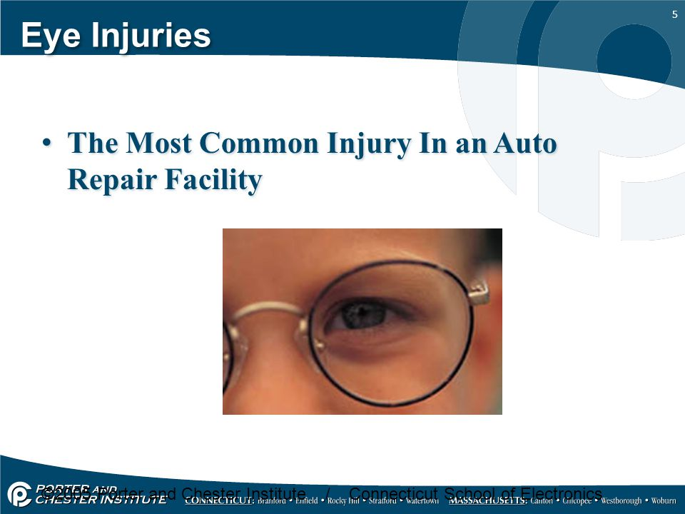Eye Injuries The Most Common Injury In an Auto Repair Facility