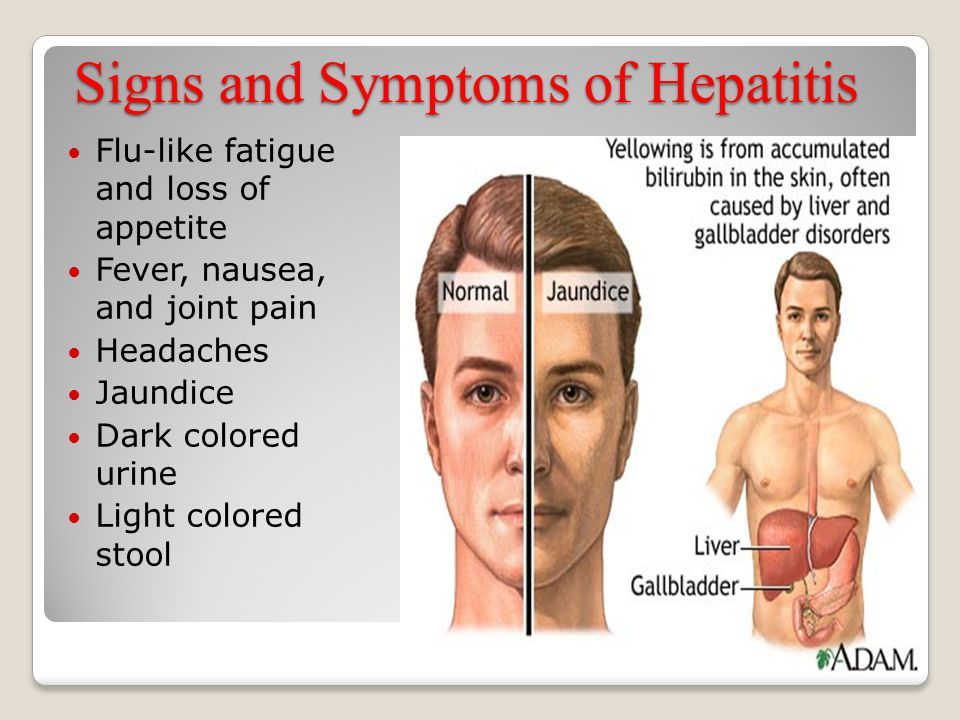 Signs and Symptoms of Hepatitis