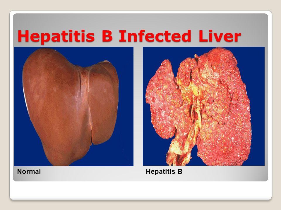 Hepatitis B Infected Liver