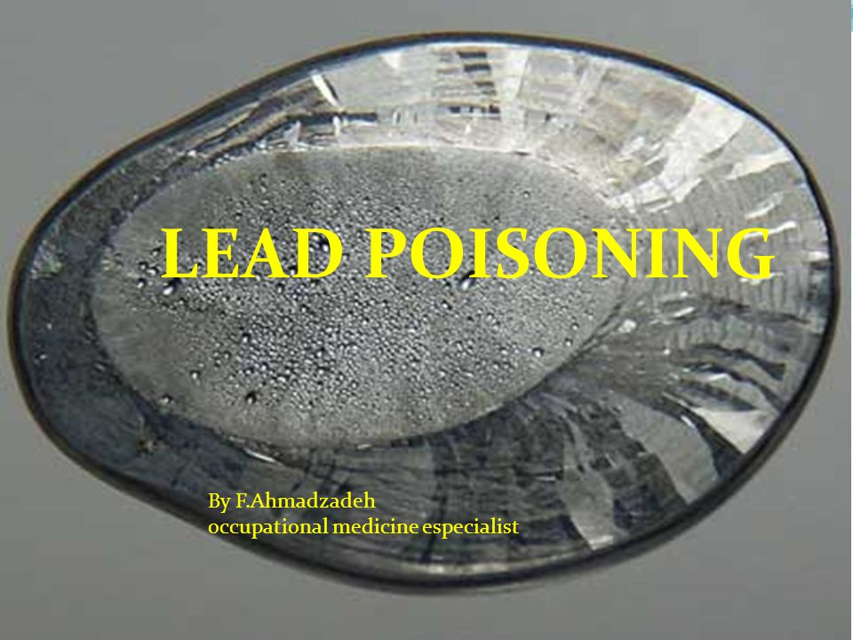 LEAD POISONING By F.Ahmadzadeh occupational medicine especialist