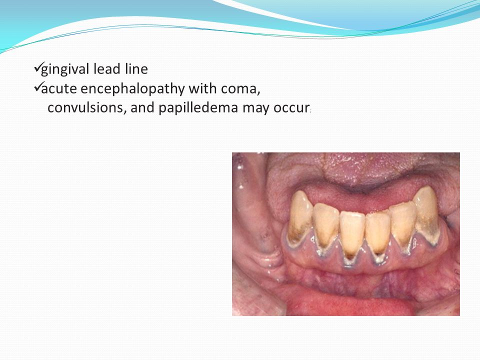 gingival lead line acute encephalopathy with coma, convulsions, and papilledema may occur;
