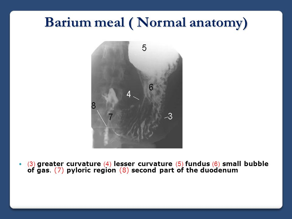 Fluoroscopic Investigations Of The Gastrointestinal Tract Ppt