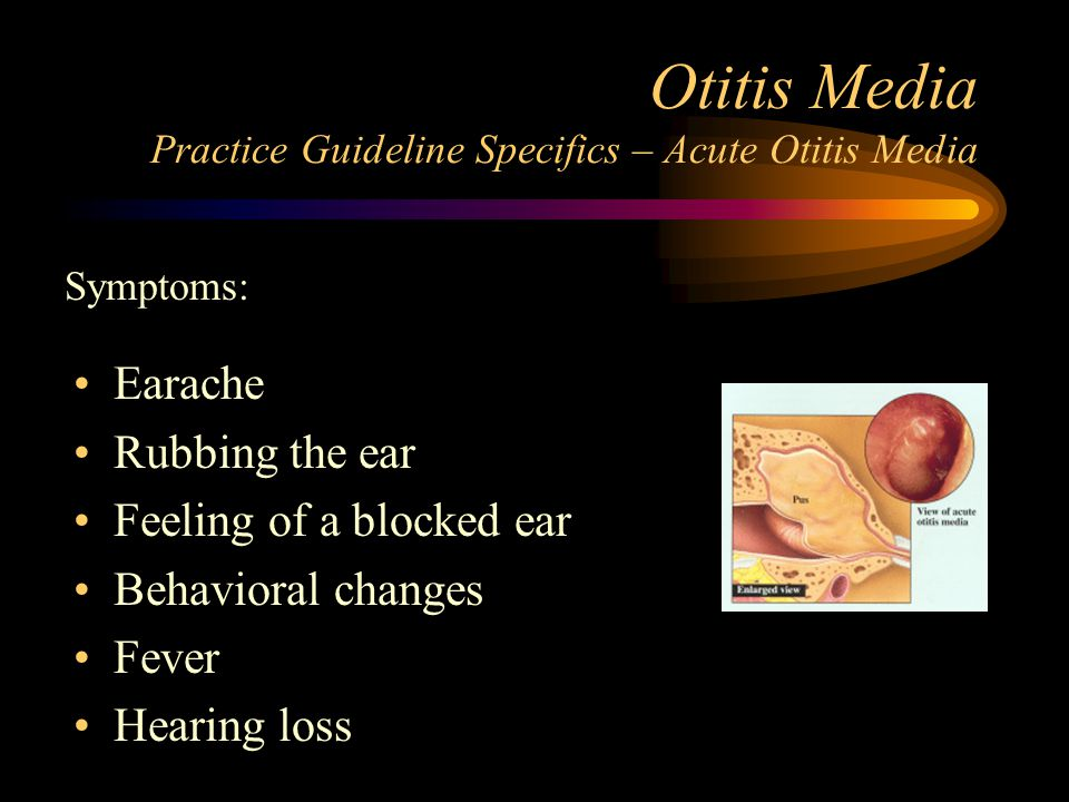 acute otitis media treatment guidelines
