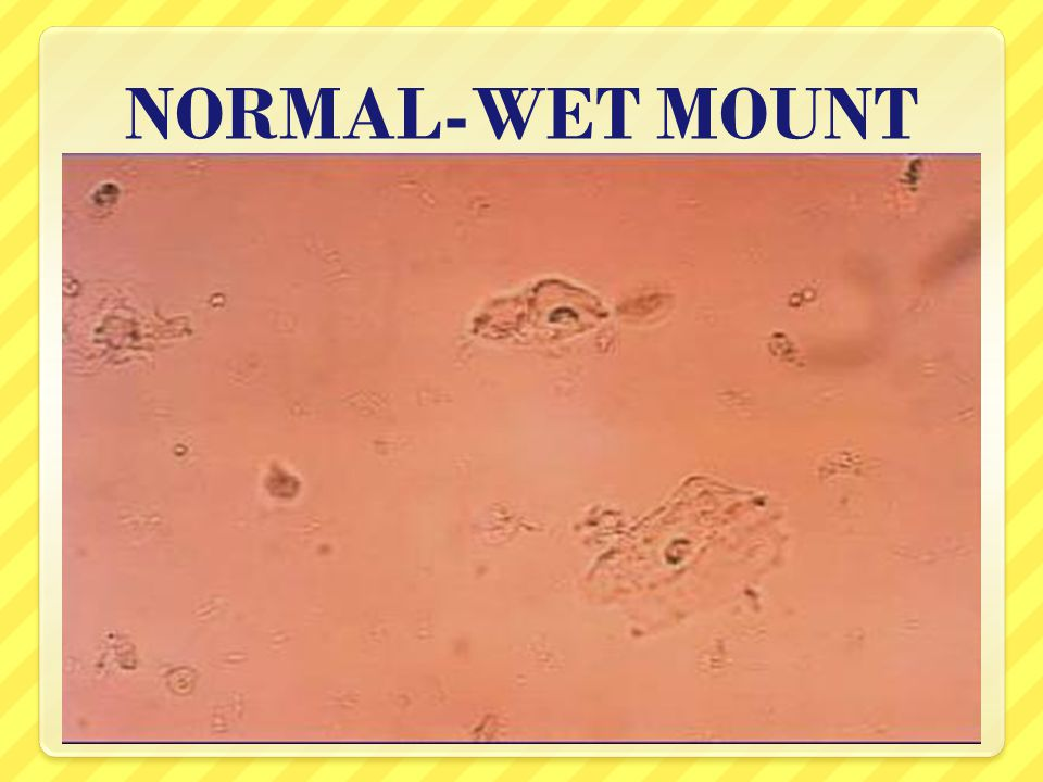 Laboratory Diagnosis Of Vaginitis Ppt Video Online Download