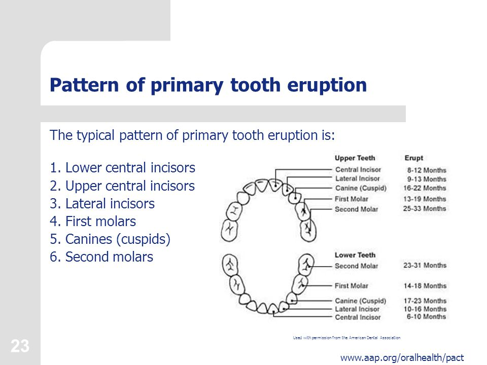 Protecting all childrens teeth ppt download pattern of primary tooth eruption ccuart Choice Image