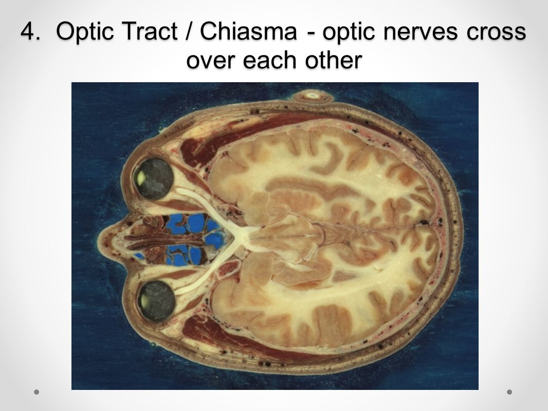 4. Optic Tract / Chiasma - optic nerves cross over each other