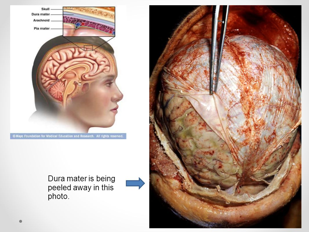 Dura mater is being peeled away in this photo.