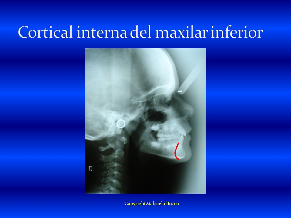 Cortical interna del maxilar inferior