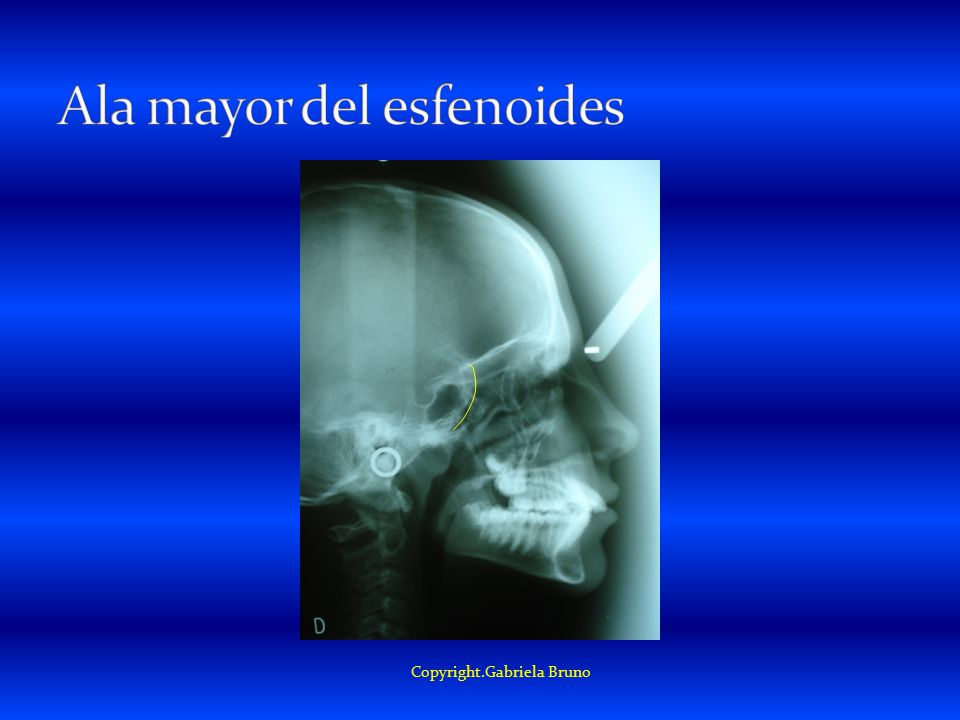Ala mayor del esfenoides