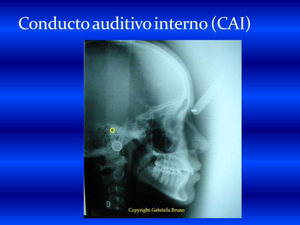 Conducto auditivo interno (CAI)