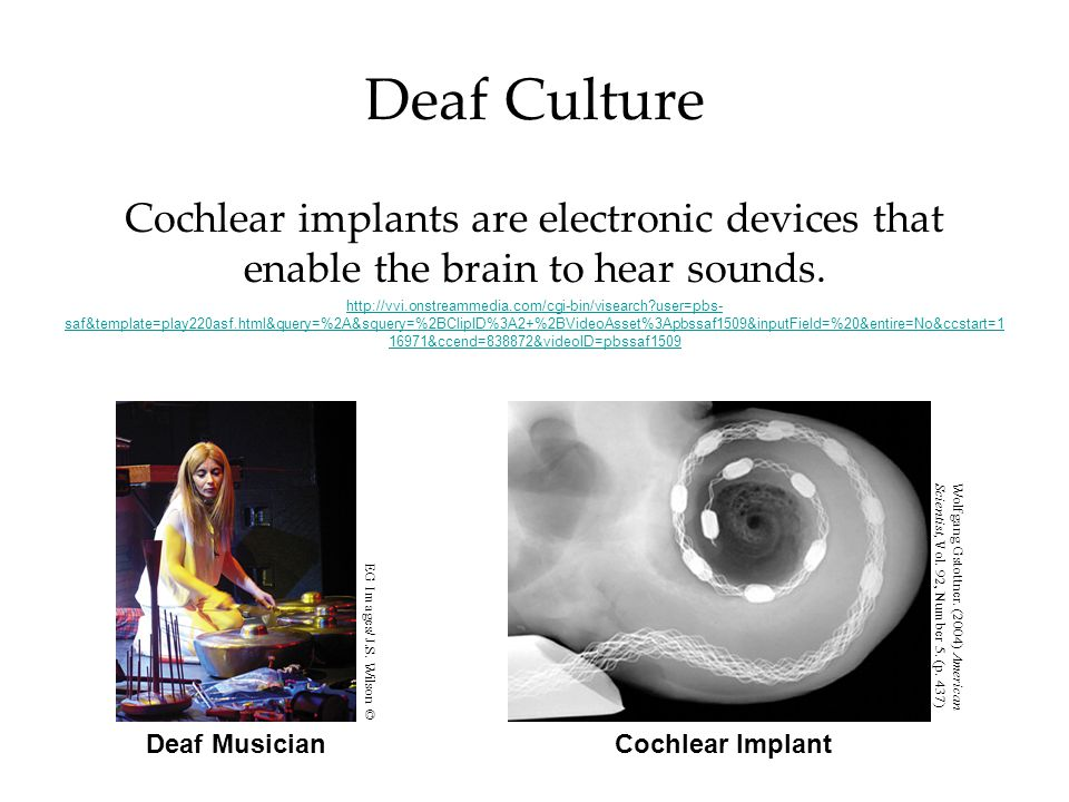Deaf Culture Cochlear implants are electronic devices that enable the brain to hear sounds.