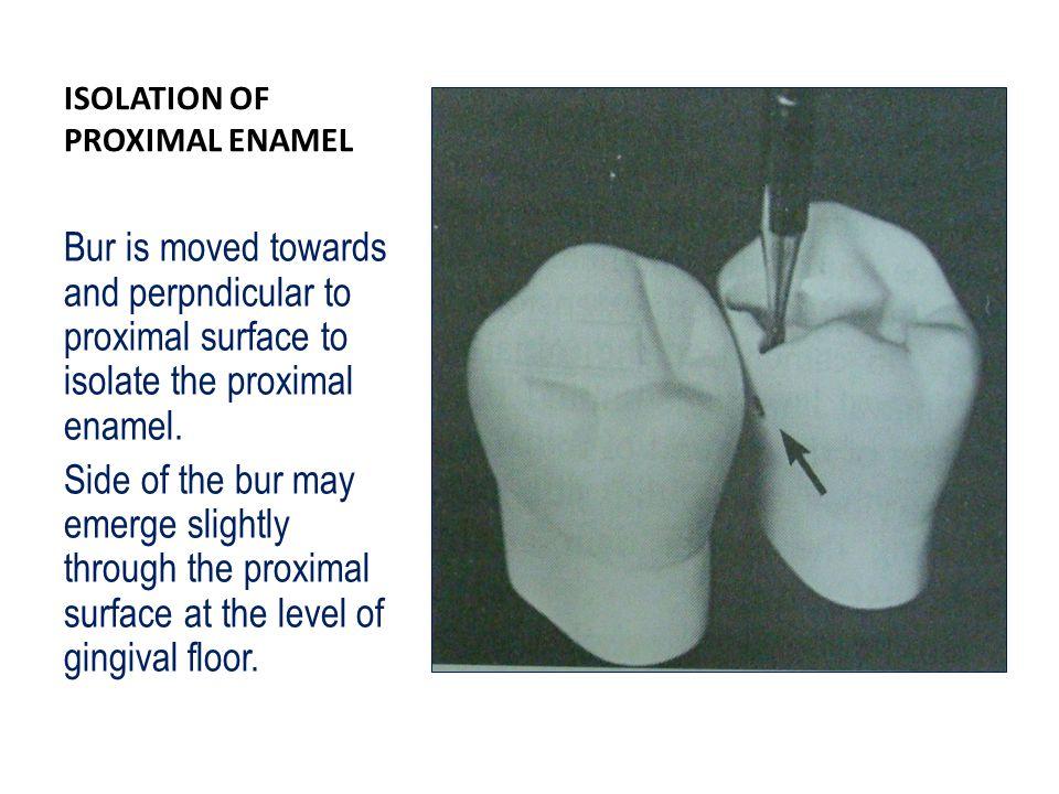 ISOLATION OF PROXIMAL ENAMEL